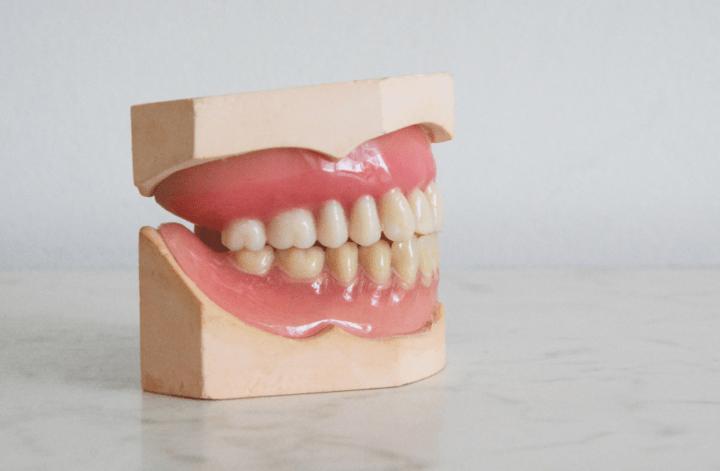 bonding zęby